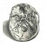 1543--Vesalio-06