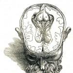 1543--Vesalio-18