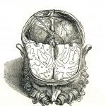 1543--Vesalio-19