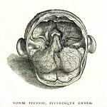 1543--Vesalio-21