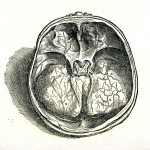1543--Vesalio-22