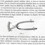 1875-Broca-04