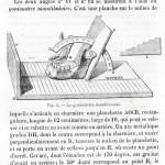 1875-Broca-09