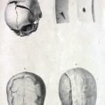 1877-Zannetti-Ferdinando-05
