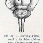 1882-Charlton-Bastian-28