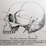 1891-Treves-04