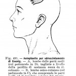 1904 MONOD 94