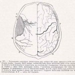1908-Pat.-Chirurgica-04