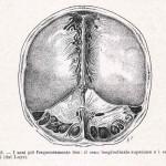 1908-Pat.-Chirurgica-05