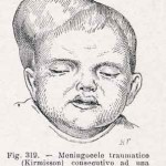 1908-Pat.-Chirurgica-06