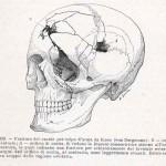 1908-Pat.-Chirurgica-07