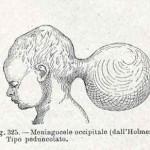1908-Pat.-Chirurgica-10