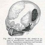 1908-Pat.-Chirurgica-12