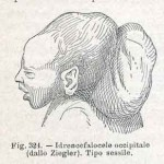 1908-Pat.-Chirurgica-13
