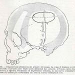 1908-Pat.-Chirurgica-14