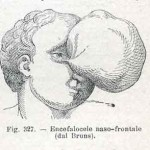 1908-Pat.-Chirurgica-15