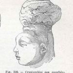 1908-Pat.-Chirurgica-16