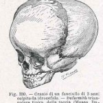 1908-Pat.-Chirurgica-17