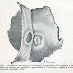 1908-Pat.-Chirurgica-20