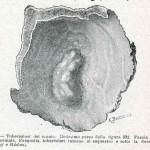 1908-Pat.-Chirurgica-21