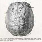 1908-Pat.-Chirurgica-22