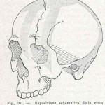 1908-Pat.-Chirurgica-26