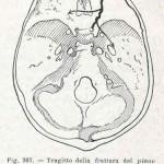 1908-Pat.-Chirurgica-37
