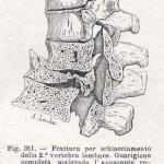 1908-Pat.-Chirurgica-42