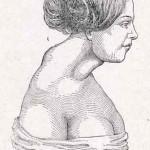 1908-Pat.-Chirurgica-44