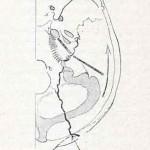 1908-Pat.-Chirurgica-45