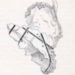 1908-Pat.-Chirurgica-46