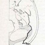 1908-Pat.-Chirurgica-49