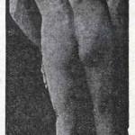 1914-Strumpell--011