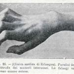 1914-Strumpell--027