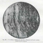 1914-Strumpell--031
