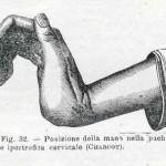 1914-Strumpell--033