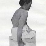 1914-Strumpell--040