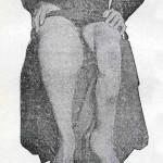 1914-Strumpell--047