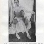1914-Strumpell--058