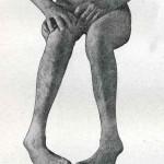1914-Strumpell--059