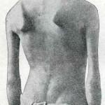 1914-Strumpell--065