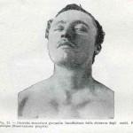 1914-Strumpell--066