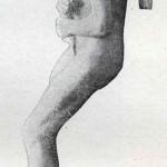1914-Strumpell--068