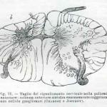 1914-Strumpell--072