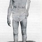 1914-Strumpell--073