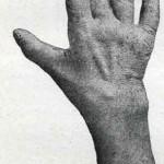 1914-Strumpell--075