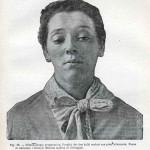 1914-Strumpell--080