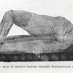 1914-Strumpell-Adolfo-102